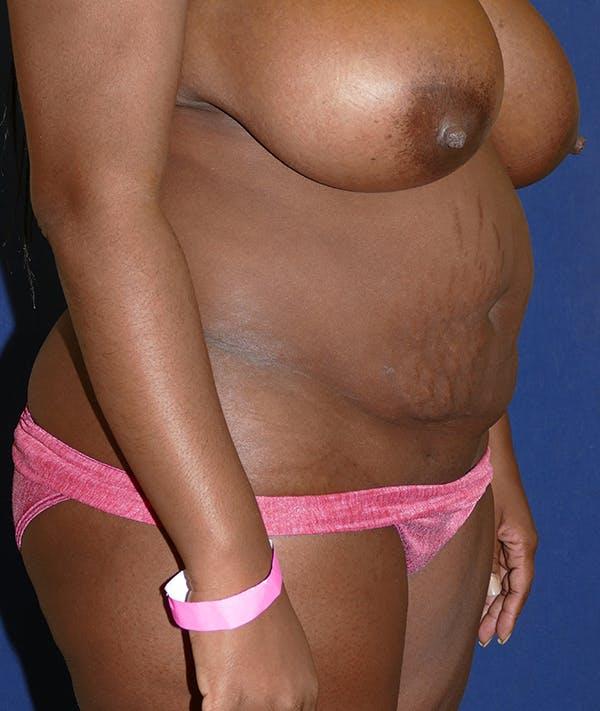 Tummy Tuck (Abdominoplasty) Gallery - Patient 31729553 - Image 7