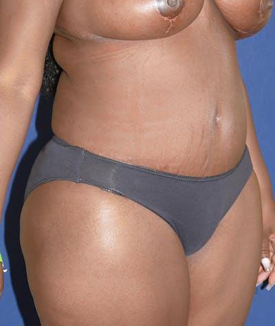 Tummy Tuck (Abdominoplasty) Gallery - Patient 31729553 - Image 8