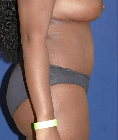 Tummy Tuck (Abdominoplasty) Gallery - Patient 31729553 - Image 10