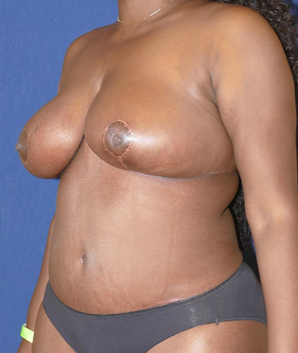 Mommy Makeover Gallery - Patient 31729566 - Image 4