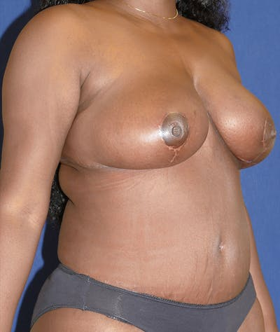 Mommy Makeover Gallery - Patient 31729566 - Image 8