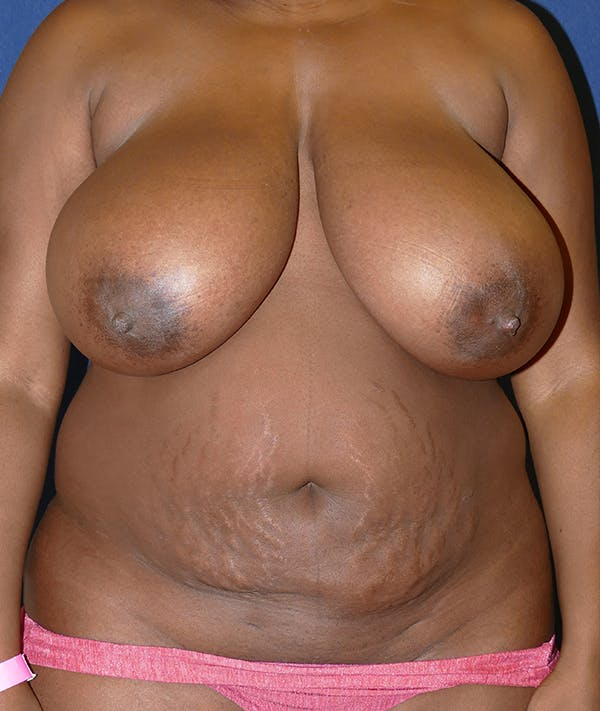 Breast Reduction Gallery - Patient 31729623 - Image 1