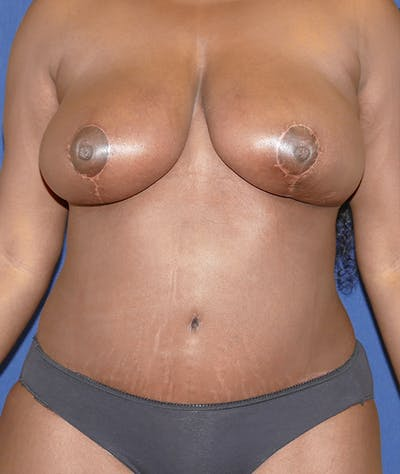 Breast Reduction Gallery - Patient 31729623 - Image 2