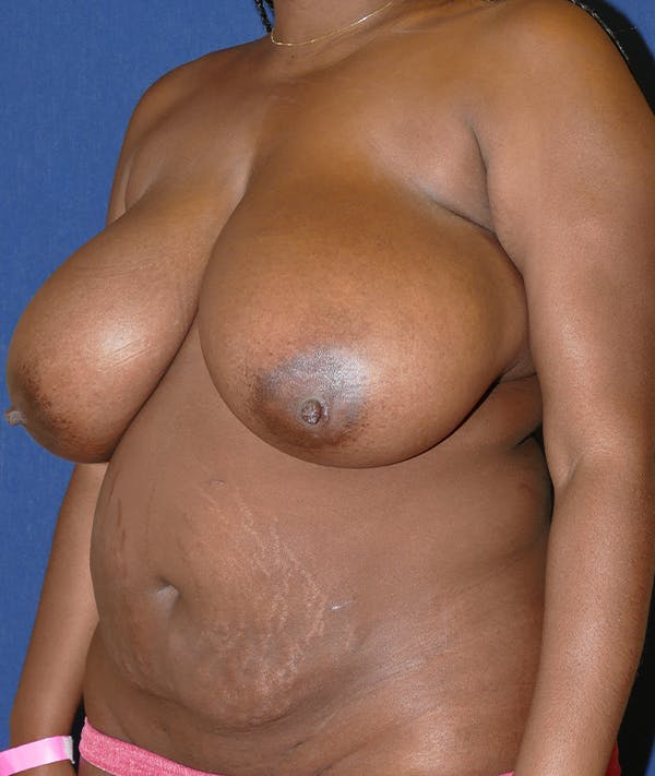 Breast Reduction Gallery - Patient 31729623 - Image 3