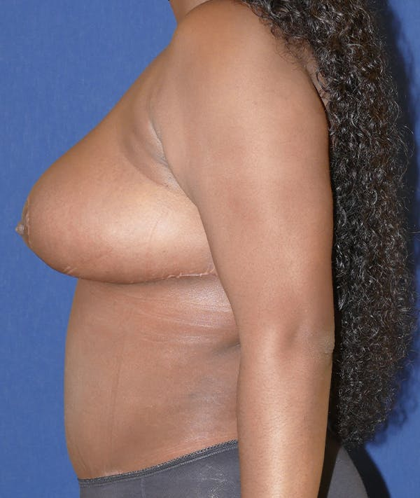 Breast Reduction Gallery - Patient 31729623 - Image 6