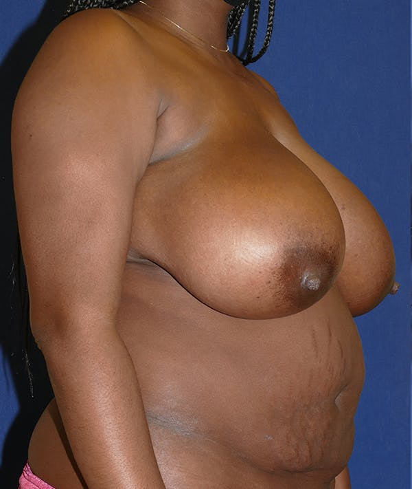 Breast Reduction Gallery - Patient 31729623 - Image 7