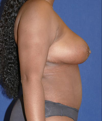 Breast Reduction Gallery - Patient 31729623 - Image 10