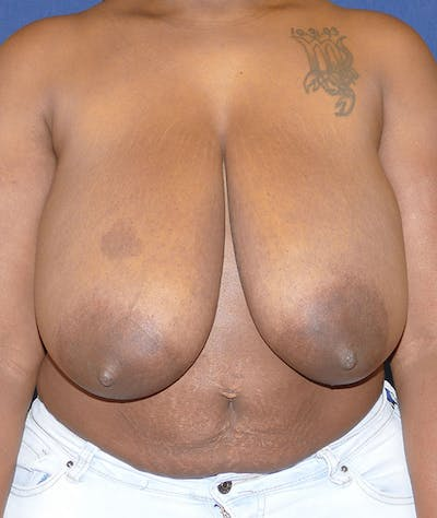 Breast Reduction Gallery - Patient 43640034 - Image 1