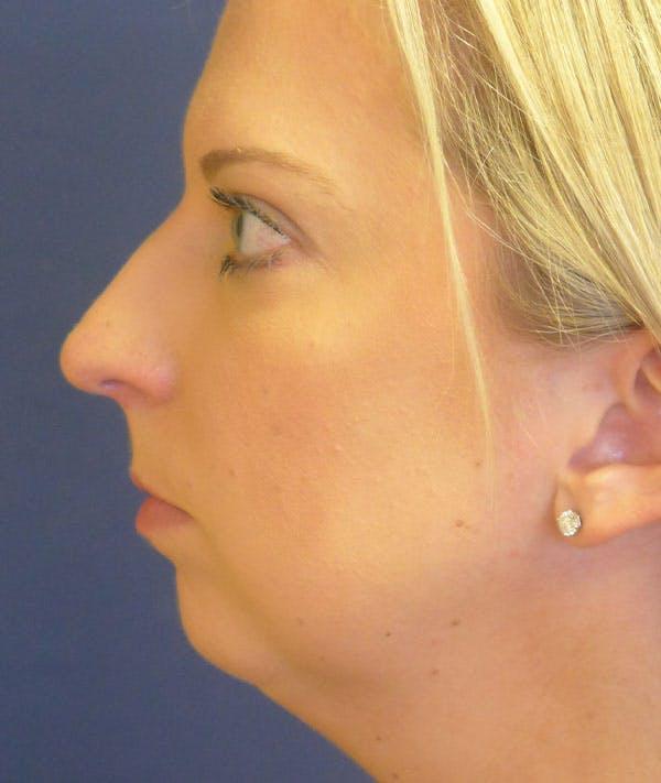 Rhinoplasty Gallery - Patient 43683021 - Image 1