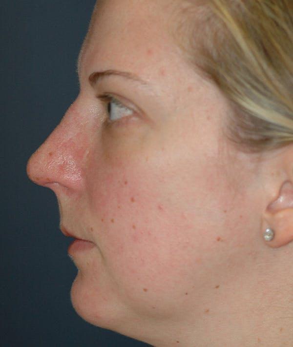 Rhinoplasty Gallery - Patient 43683021 - Image 2