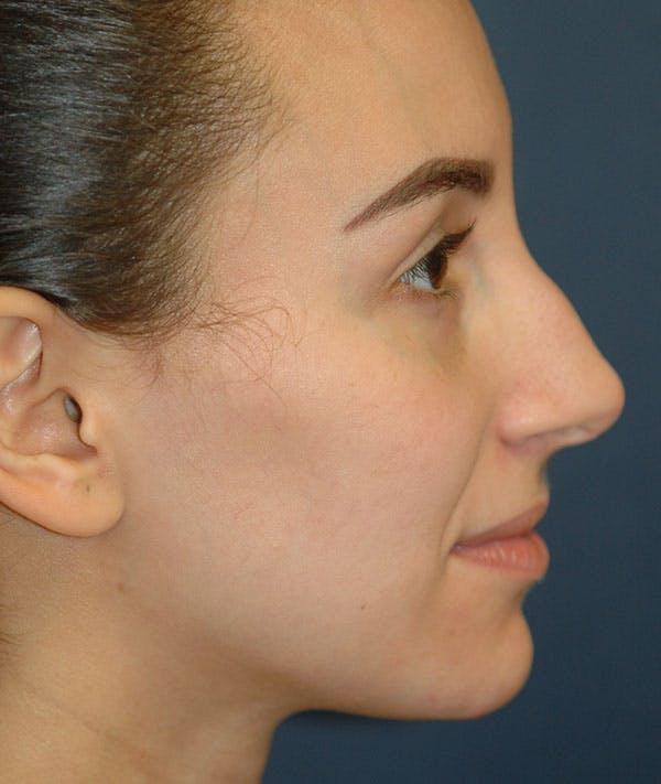 Rhinoplasty Gallery - Patient 43695340 - Image 5