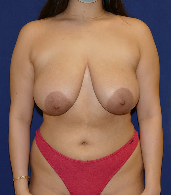 Breast Lift Gallery - Patient 54025756 - Image 1