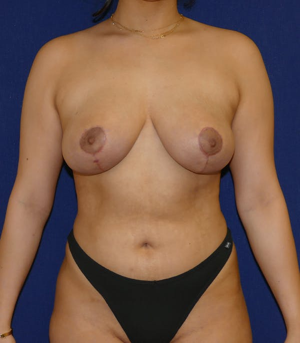 Breast Lift Gallery - Patient 54025756 - Image 2