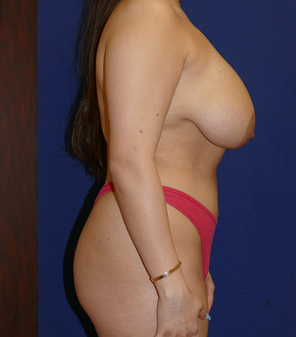 Breast Lift Gallery - Patient 54025756 - Image 3