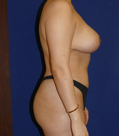 Breast Lift Gallery - Patient 54025756 - Image 4