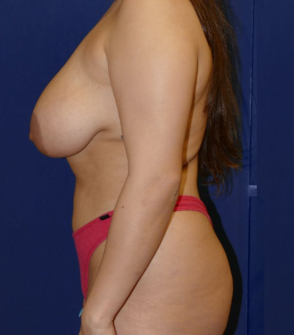 Breast Lift Gallery - Patient 54025756 - Image 5