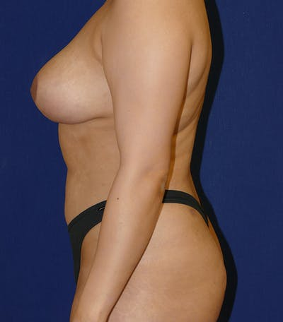 Breast Lift Gallery - Patient 54025756 - Image 6