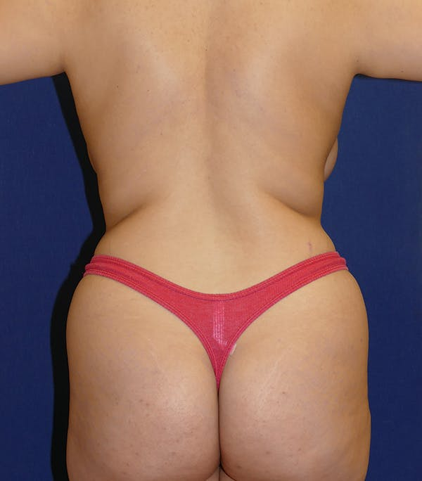 Breast Lift Gallery - Patient 54025756 - Image 7