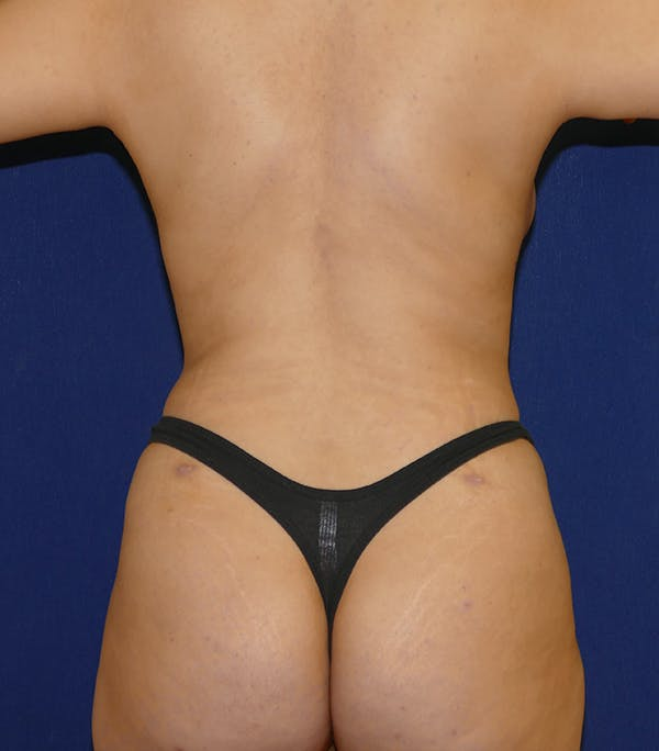 Breast Lift Gallery - Patient 54025756 - Image 8