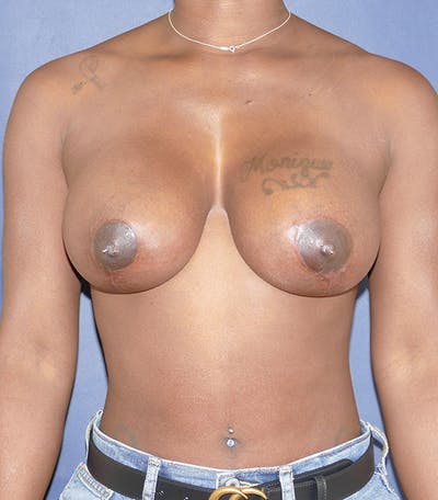 Breast Lift Gallery - Patient 54025779 - Image 2