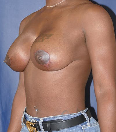 Breast Lift Gallery - Patient 54025779 - Image 4