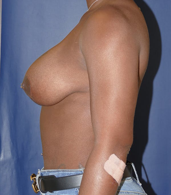 Breast Lift Gallery - Patient 54025779 - Image 6