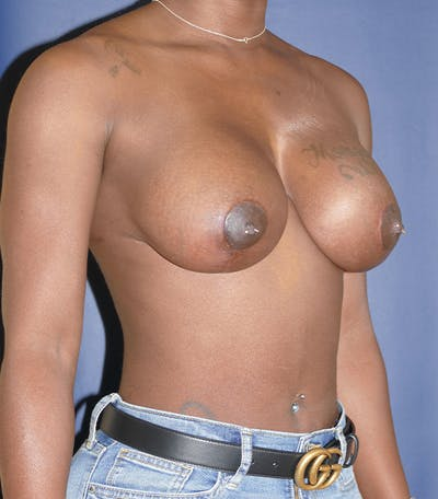 Breast Lift Gallery - Patient 54025779 - Image 8
