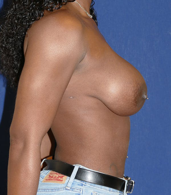 Breast Lift Gallery - Patient 54025779 - Image 9