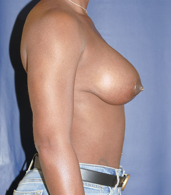 Breast Lift Gallery - Patient 54025779 - Image 10