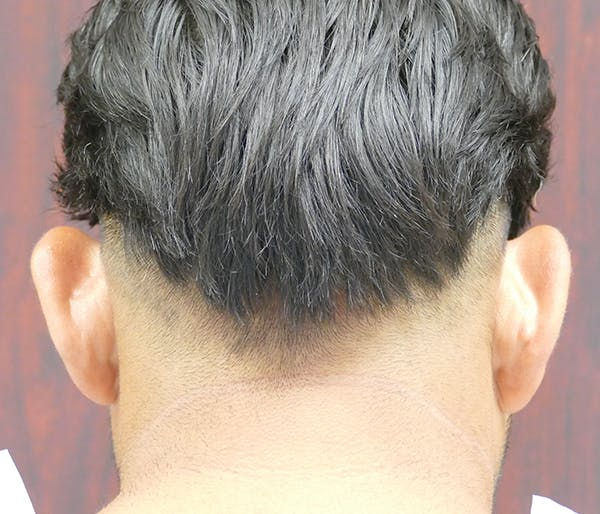 Ear Pinning (Otoplasty) Gallery - Patient 54025817 - Image 3