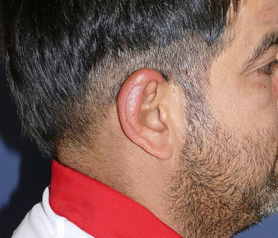Ear Pinning (Otoplasty) Gallery - Patient 54025817 - Image 6