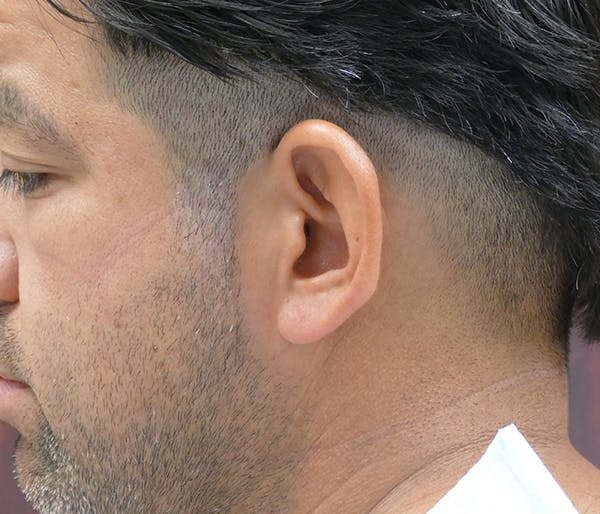 Ear Pinning (Otoplasty) Gallery - Patient 54025817 - Image 7