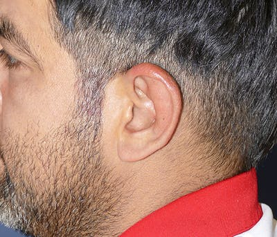 Ear Pinning (Otoplasty) Gallery - Patient 54025817 - Image 8