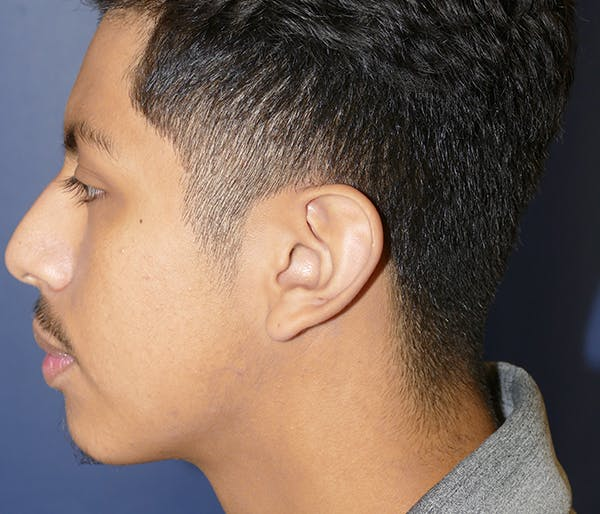 Ear Pinning (Otoplasty) Gallery - Patient 54025979 - Image 5