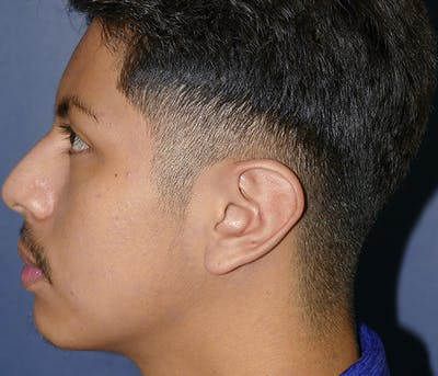 Ear Pinning (Otoplasty) Gallery - Patient 54025979 - Image 6