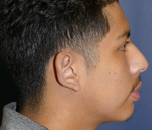Ear Pinning (Otoplasty) Gallery - Patient 54025979 - Image 7
