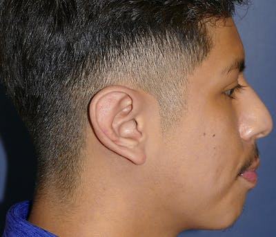 Ear Pinning (Otoplasty) Gallery - Patient 54025979 - Image 8