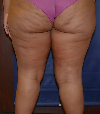 Thigh Lift Gallery - Patient 54026074 - Image 2