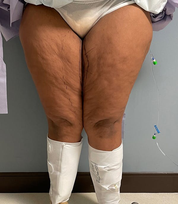 Thigh Lift Gallery - Patient 54026074 - Image 3