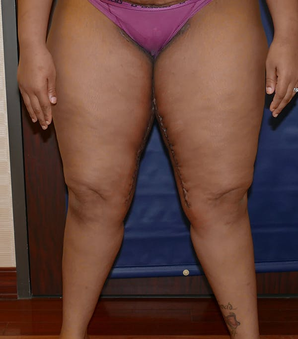 Thigh Lift Gallery - Patient 54026074 - Image 4