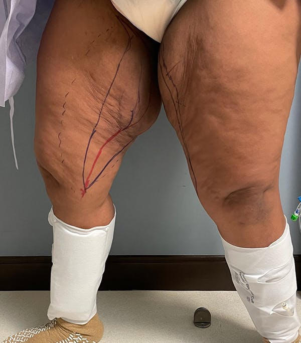 Thigh Lift Gallery - Patient 54026074 - Image 5