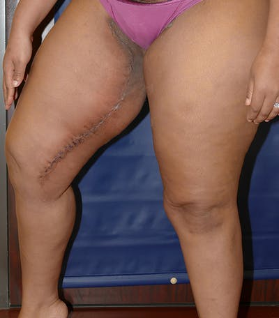 Thigh Lift Gallery - Patient 54026074 - Image 6