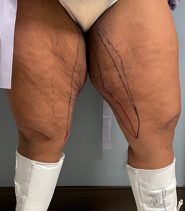 Thigh Lift Gallery - Patient 54026074 - Image 7