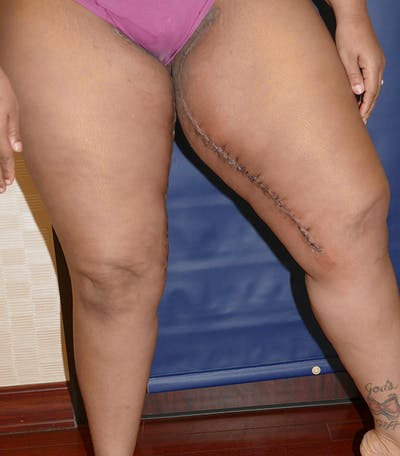 Thigh Lift Gallery - Patient 54026074 - Image 8
