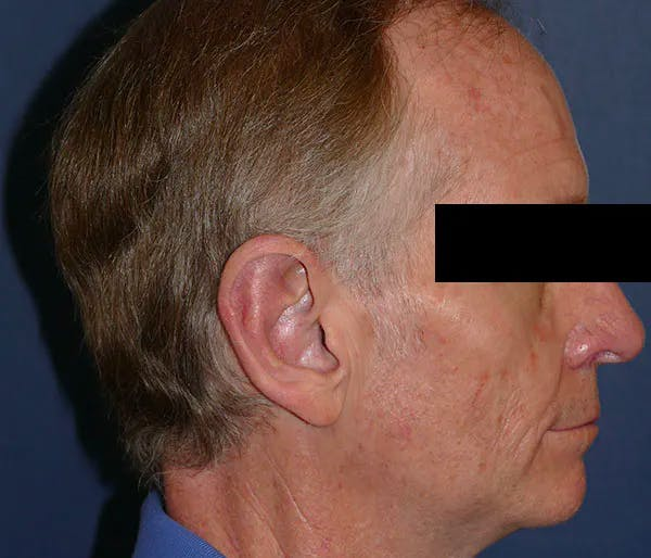Ear Pinning (Otoplasty) Gallery - Patient 43670706 - Image 4