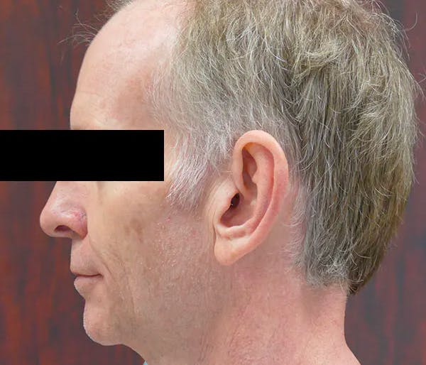 Ear Pinning (Otoplasty) Gallery - Patient 43670706 - Image 5