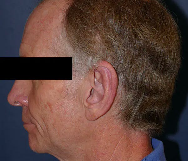 Ear Pinning (Otoplasty) Gallery - Patient 43670706 - Image 6
