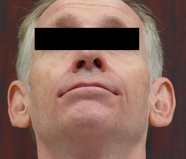 Ear Pinning (Otoplasty) Gallery - Patient 43670706 - Image 7