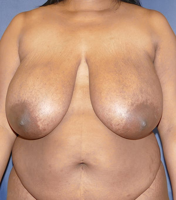 Breast Reduction Gallery - Patient 57939162 - Image 1