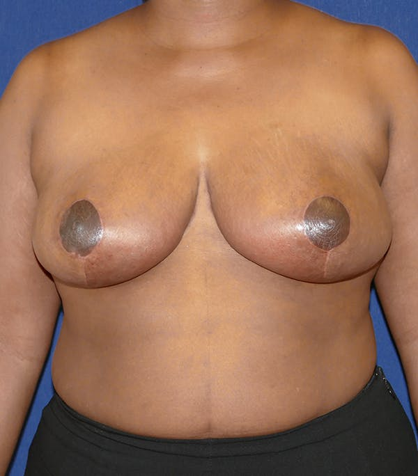 Breast Reduction Gallery - Patient 57939162 - Image 2